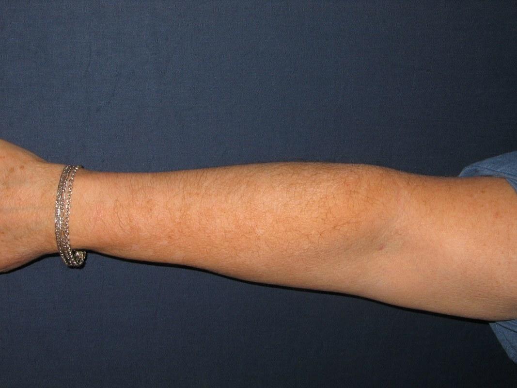 rechterarm vitiligo na